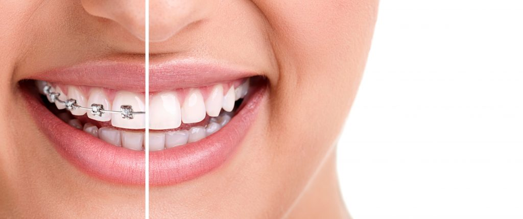 Plano odontológico e suas vantagens!