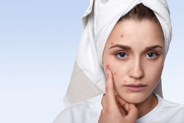5 maneiras de identificar se você está com distúrbio hormonal